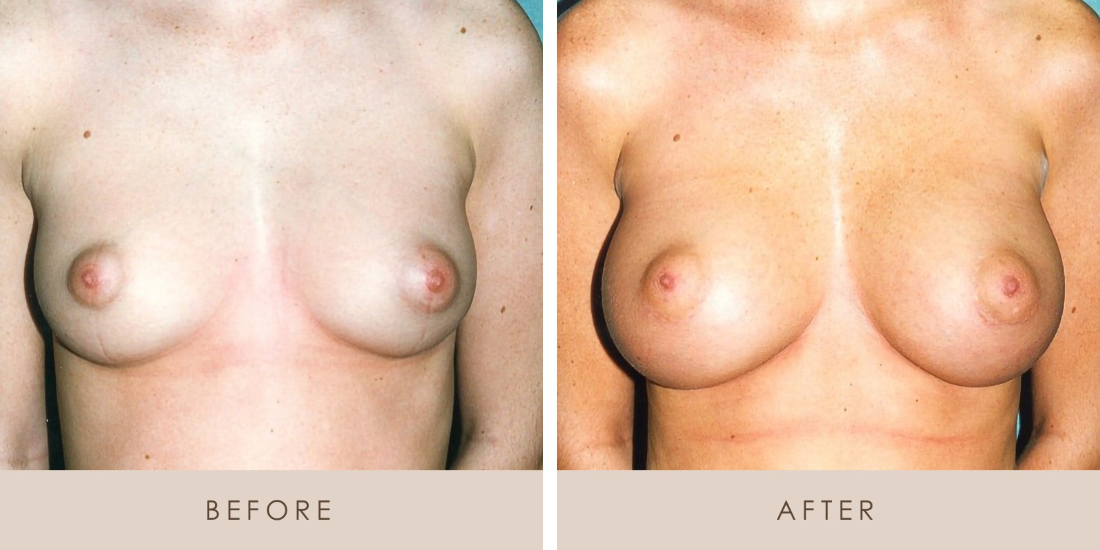 Breast Augmentation PT 1 Before and After H