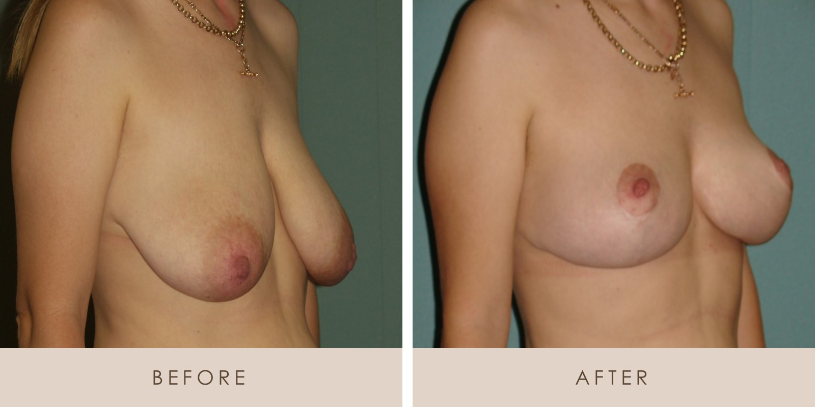 Breast Lift PT 3 Before and After S 2