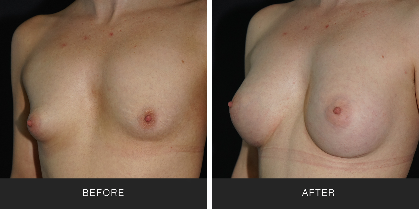 Breast Augmentation (19608)