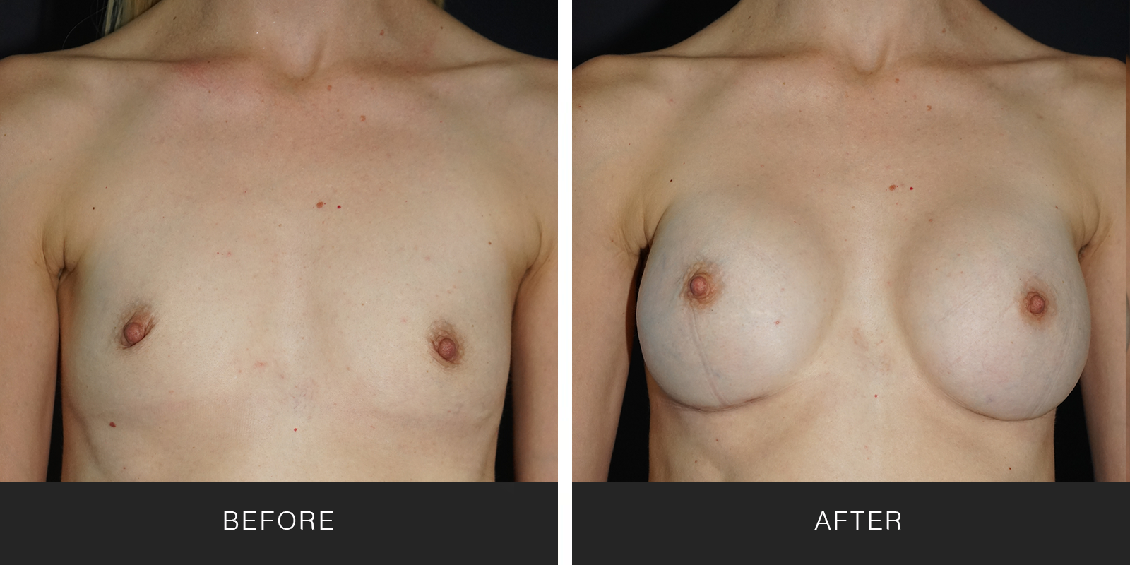 Breast Augmentation (19679)