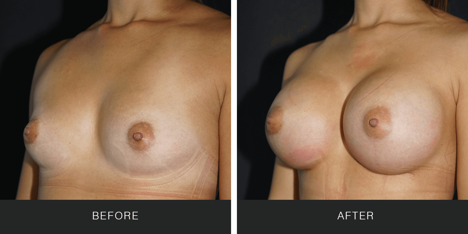 Breast Augmentation 3