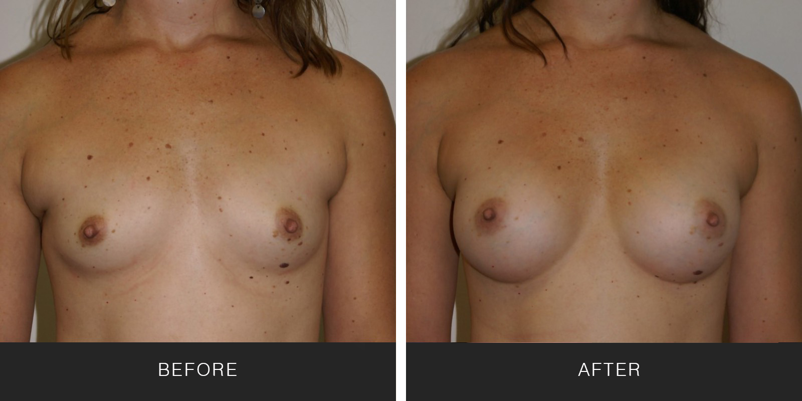 Breast Augmentation 22