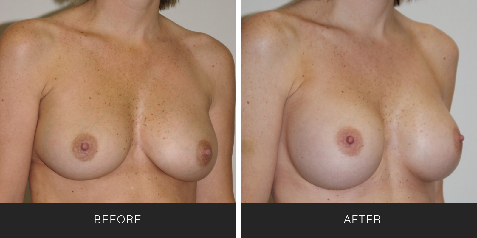 Breast Augmentation 27