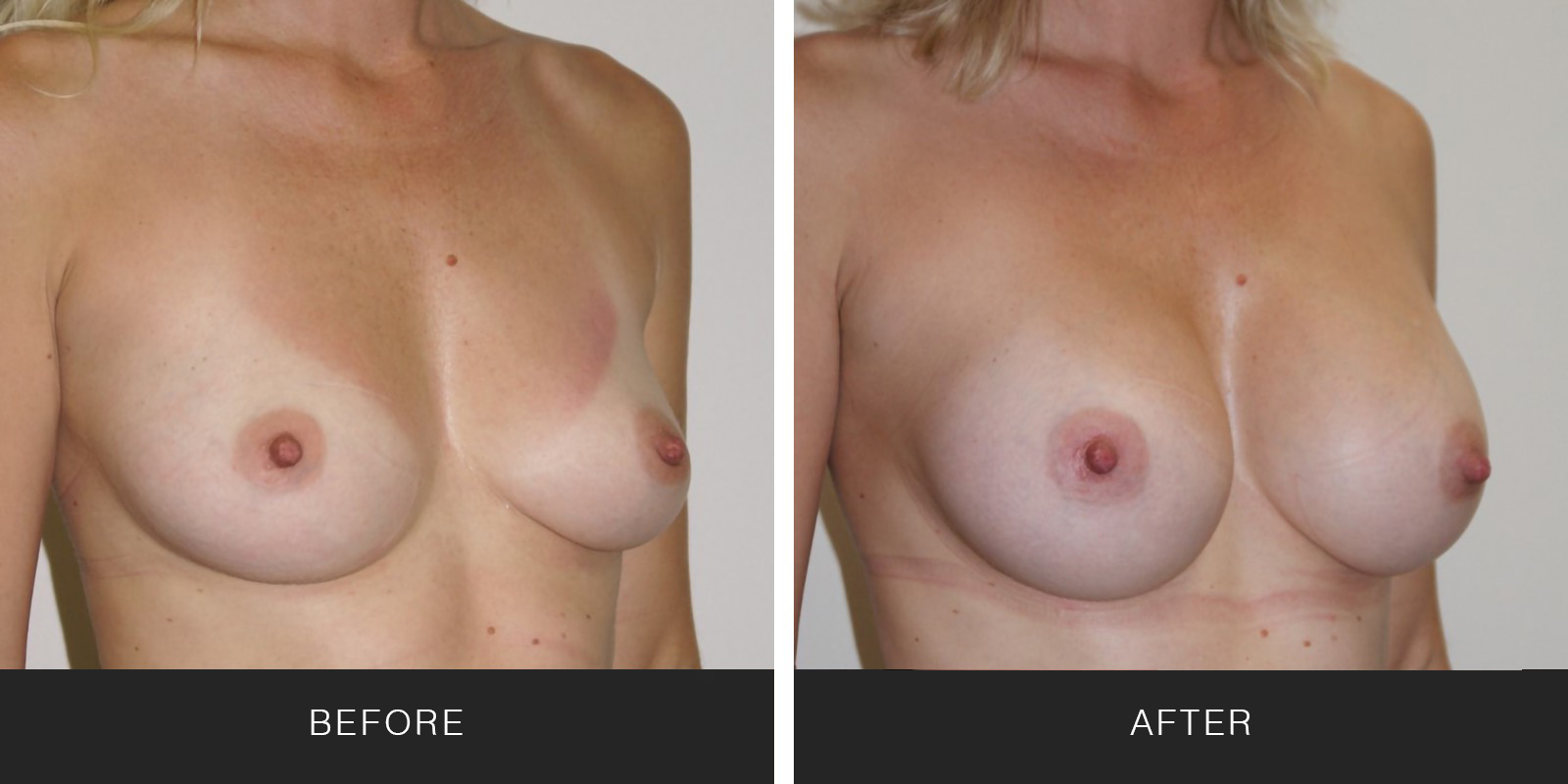 Breast Augmentation 30