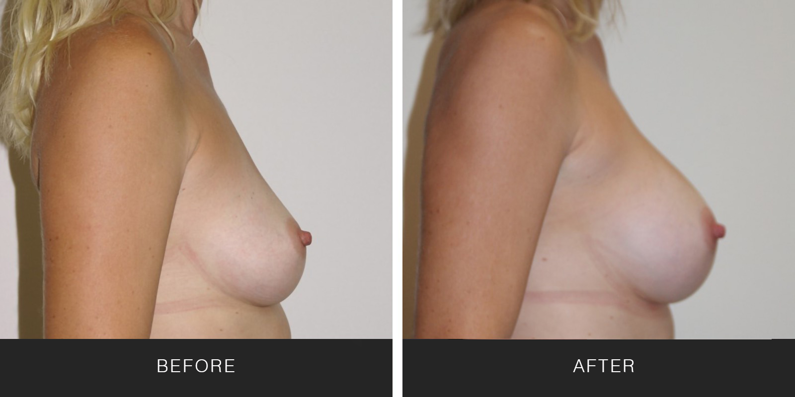 BREAST AUGMENTATION31