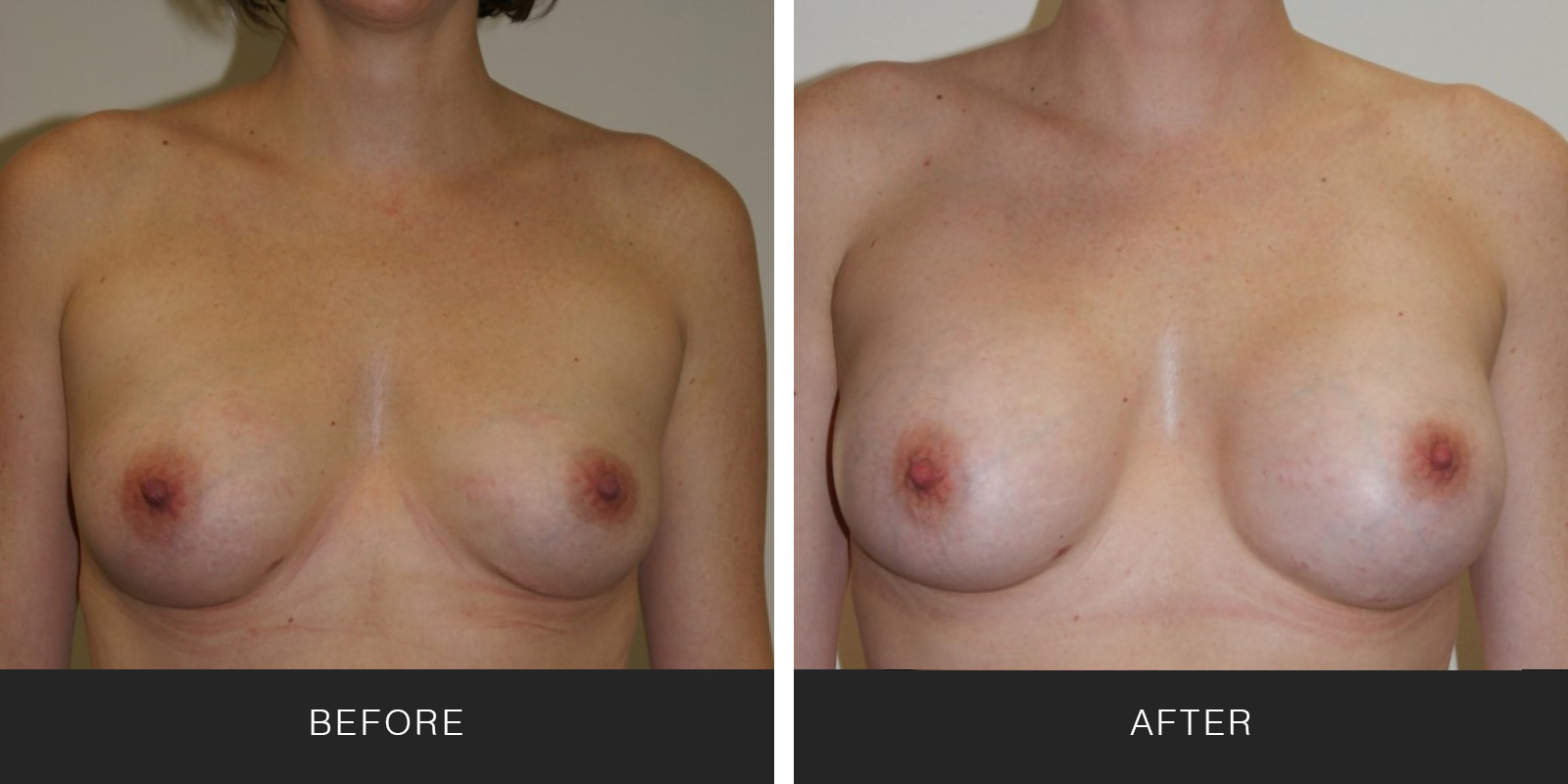 Breast Augmentation 32