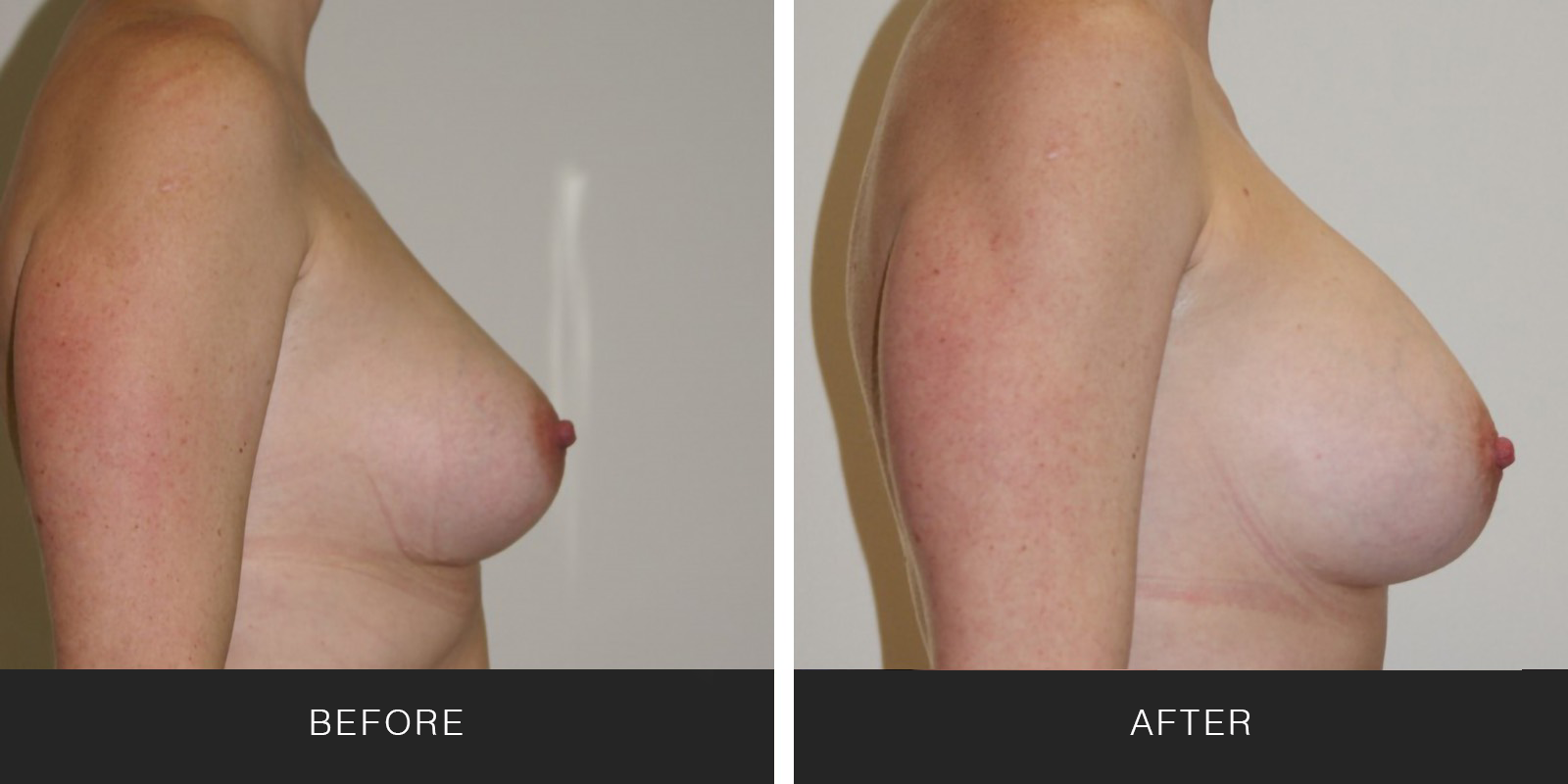 Breast Augmentation 33