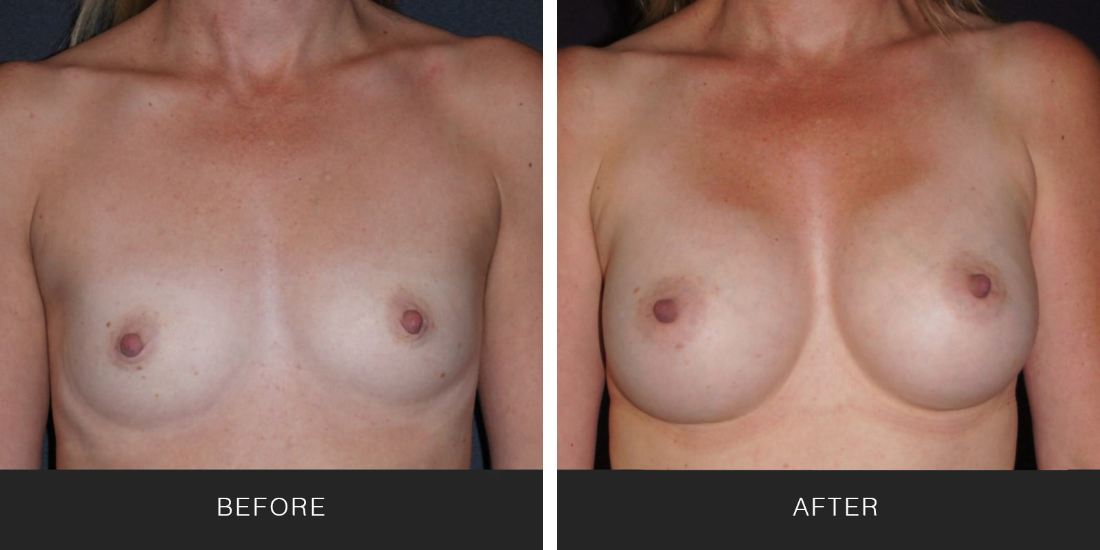 Breast Augmentation 37