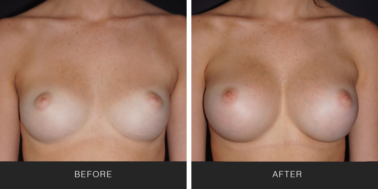 Breast Augmentation 39