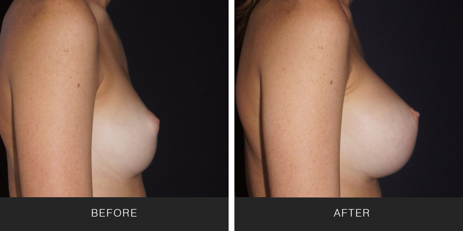 BREAST AUGMENTATION40
