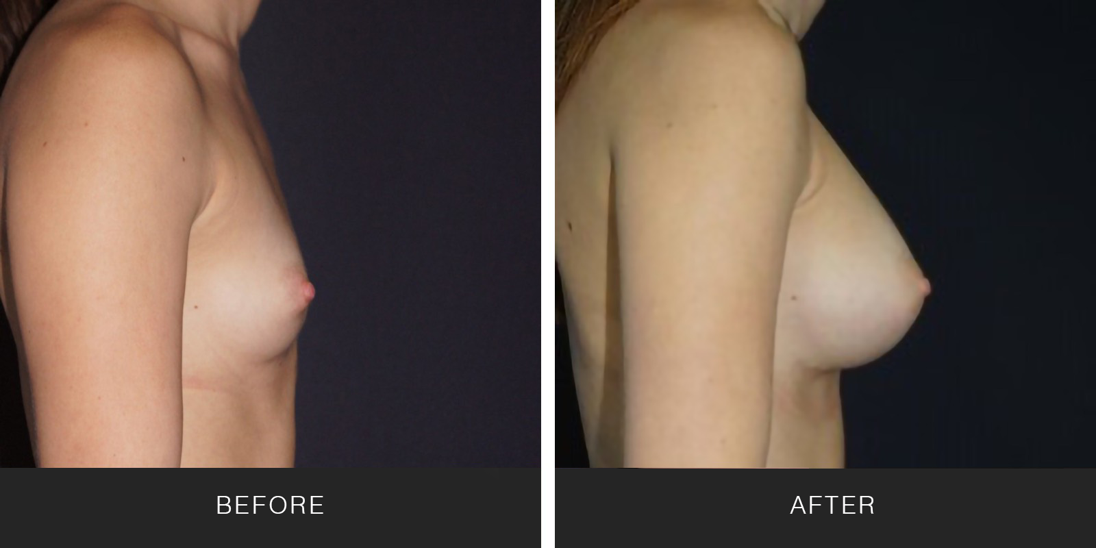 Breast Augmentation 46