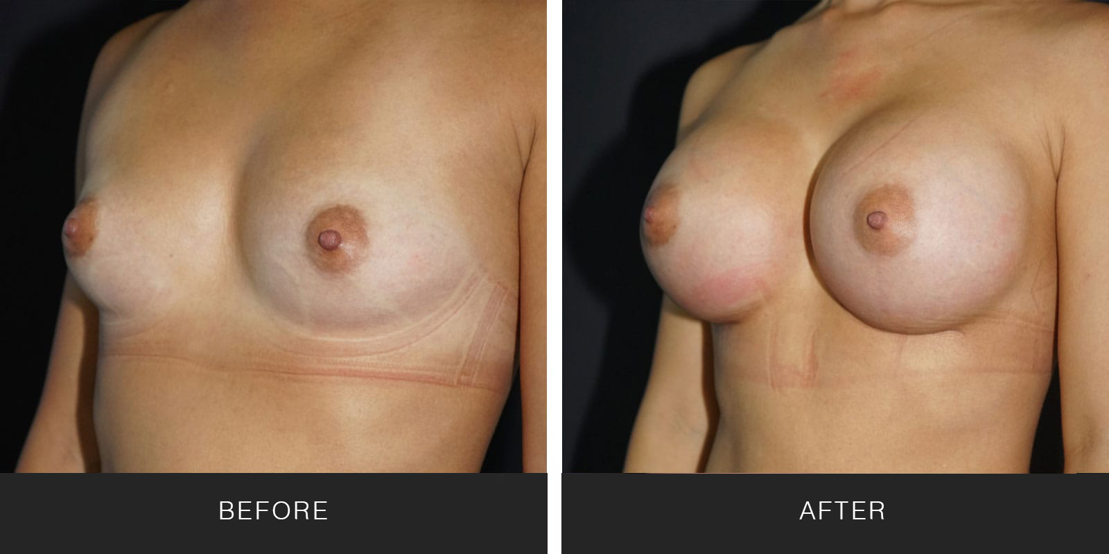 Breast Augmentation 48