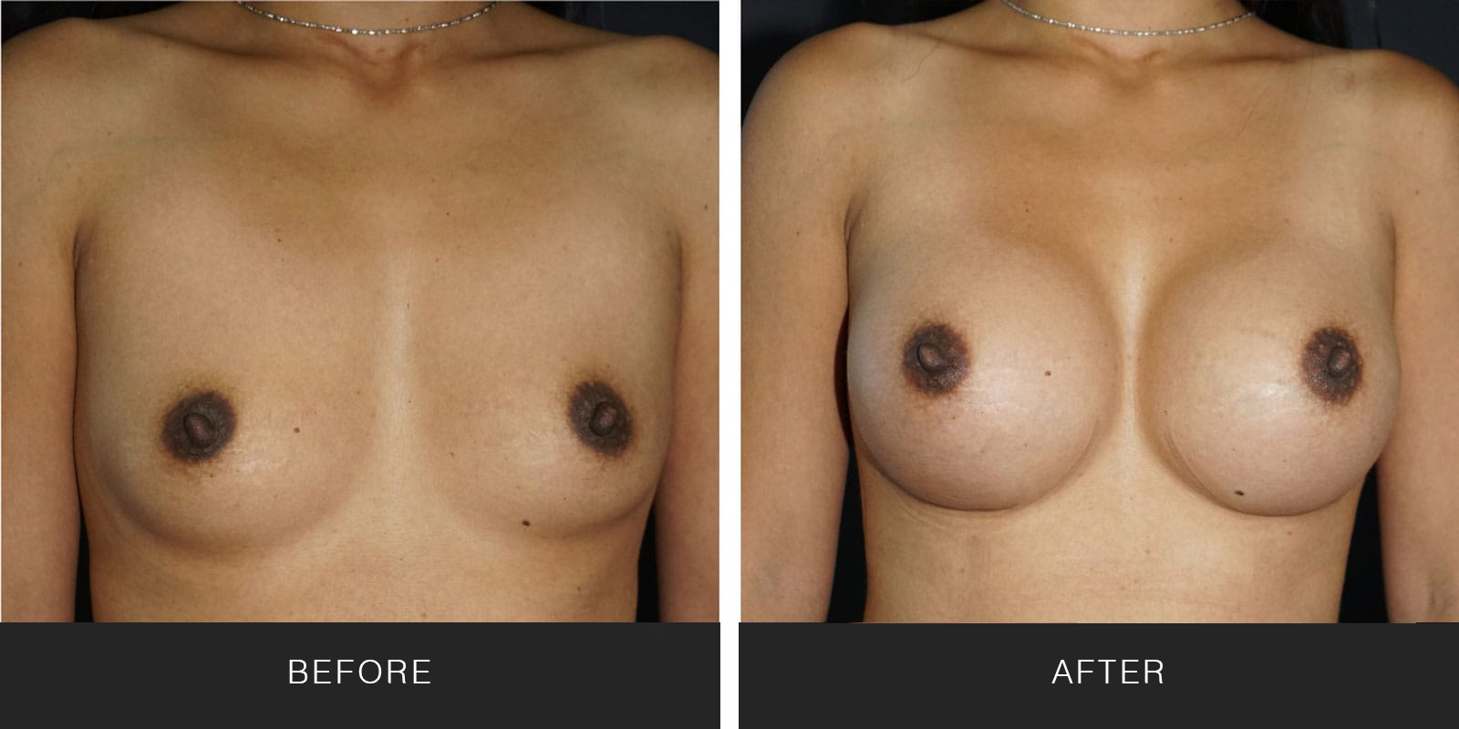Breast Augmentation 49