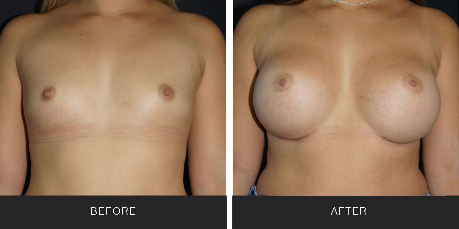 Breast Augmentation 50