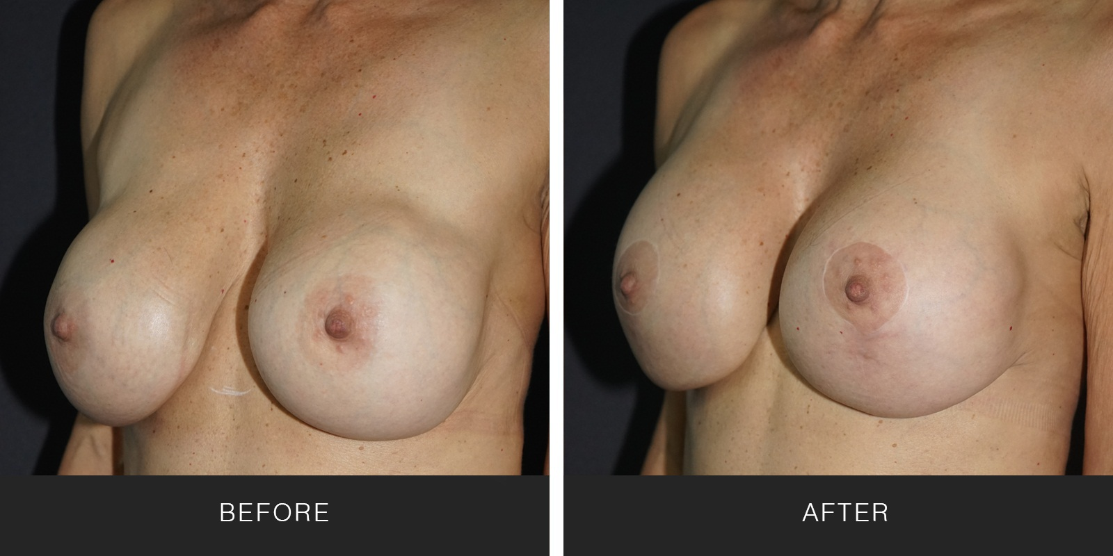 BREAST IMPLANT REMOVAL AND REPLACEMENT1