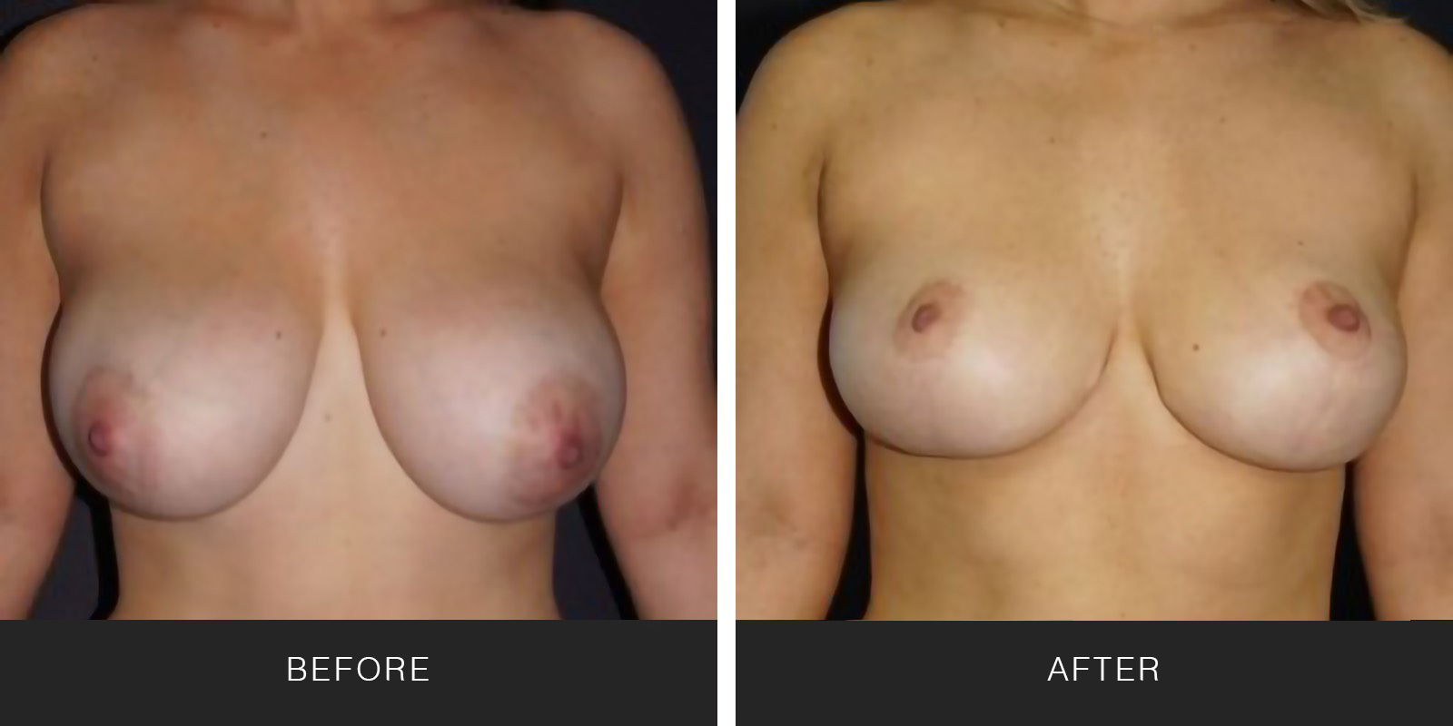 BREAST LIFT2