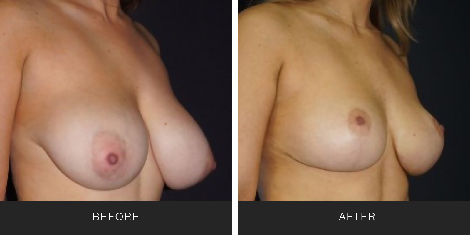BREAST LIFT3