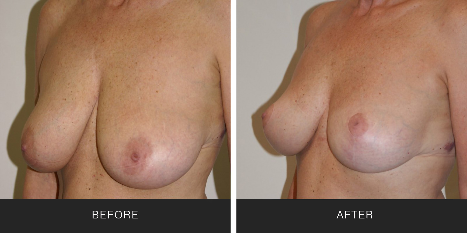 BREAST REDUCTION7